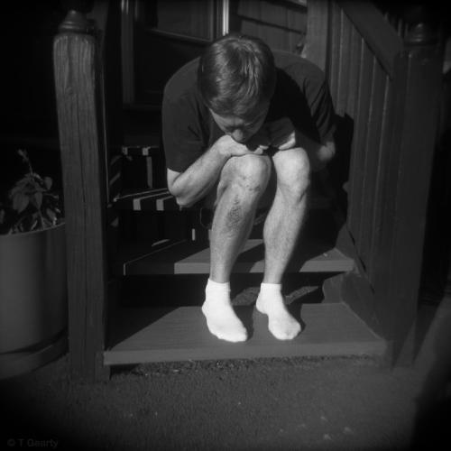 Self-portrait with bad scrape #2, 2005