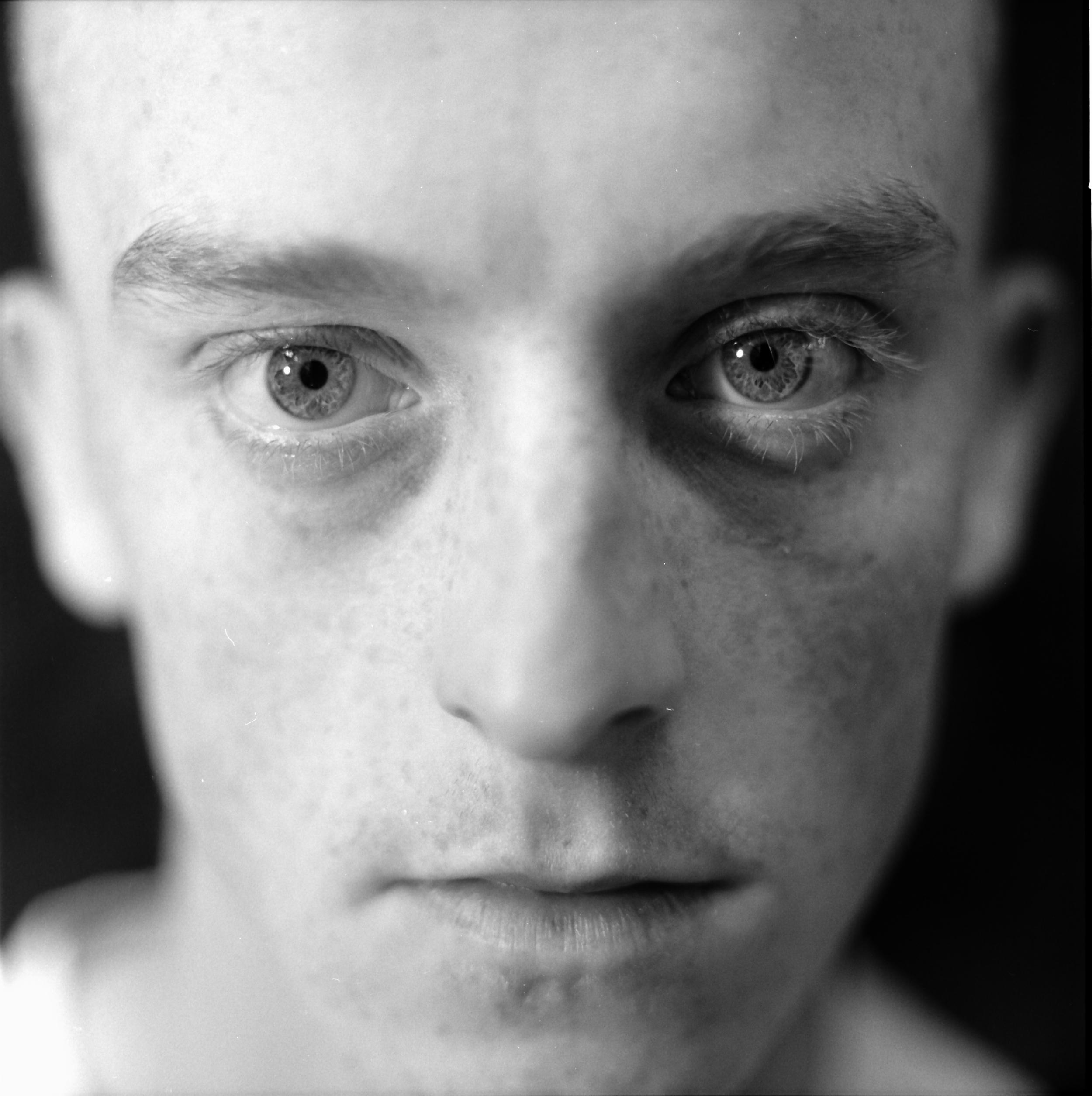 Freckledface.jpg