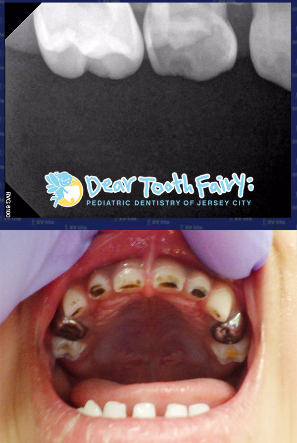 Xray: A baby molar with large tooth decay Picture: Hall crowns and SDF arrested decay