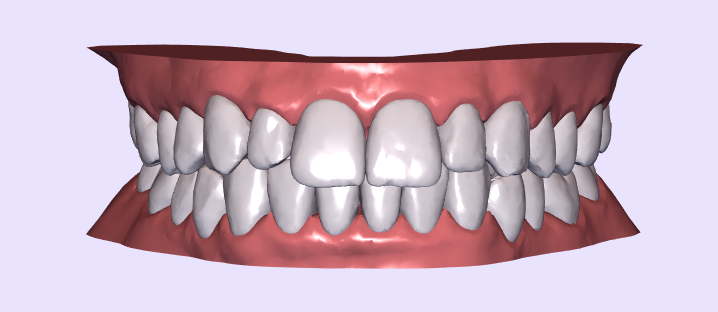 Smile Direct Club Review - See my Smile Direct Club before and stay tuned for the afters.  Ready to get some great invisible aligners to straighten your teeth?  Check out Smile Direct Club
