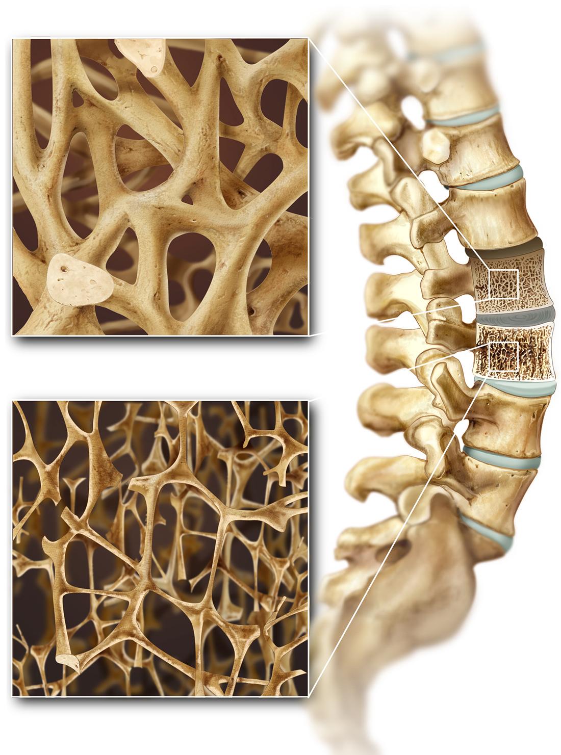 Osteoporosis vs healthy bone
