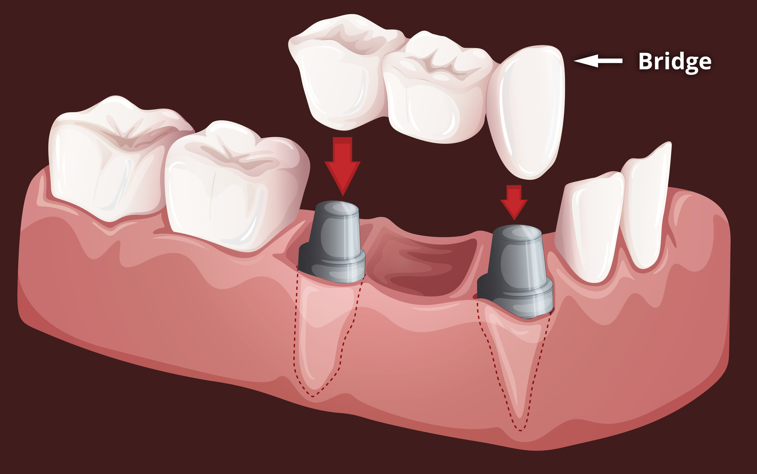 three unit dental bridge insertion