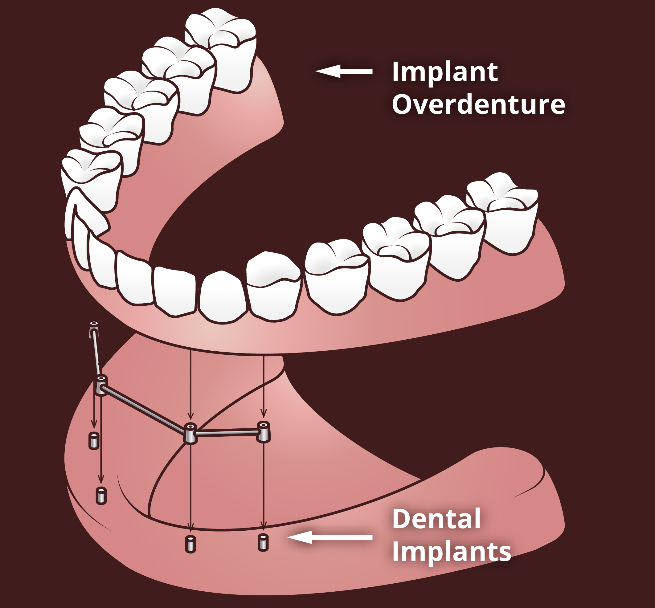 implant overdenture supported by dental implant