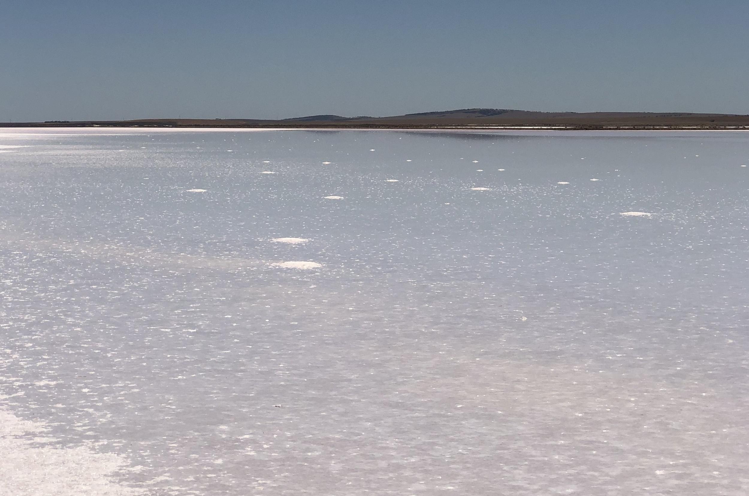 Lake Bumbunga, that you? You're looking kinda pale.