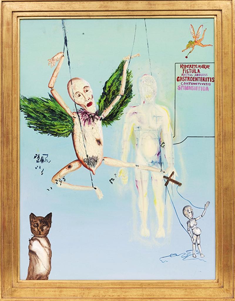"""""""Hyperpylaurie Fistula Rectal Abscess Gastroenteritis Conjunctivitis Spinabiffida"""" by Kurt Cobain"""