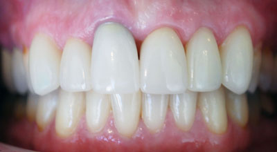 AFTER  :  Cleaned up smile, new crown and repair — confidence regained!