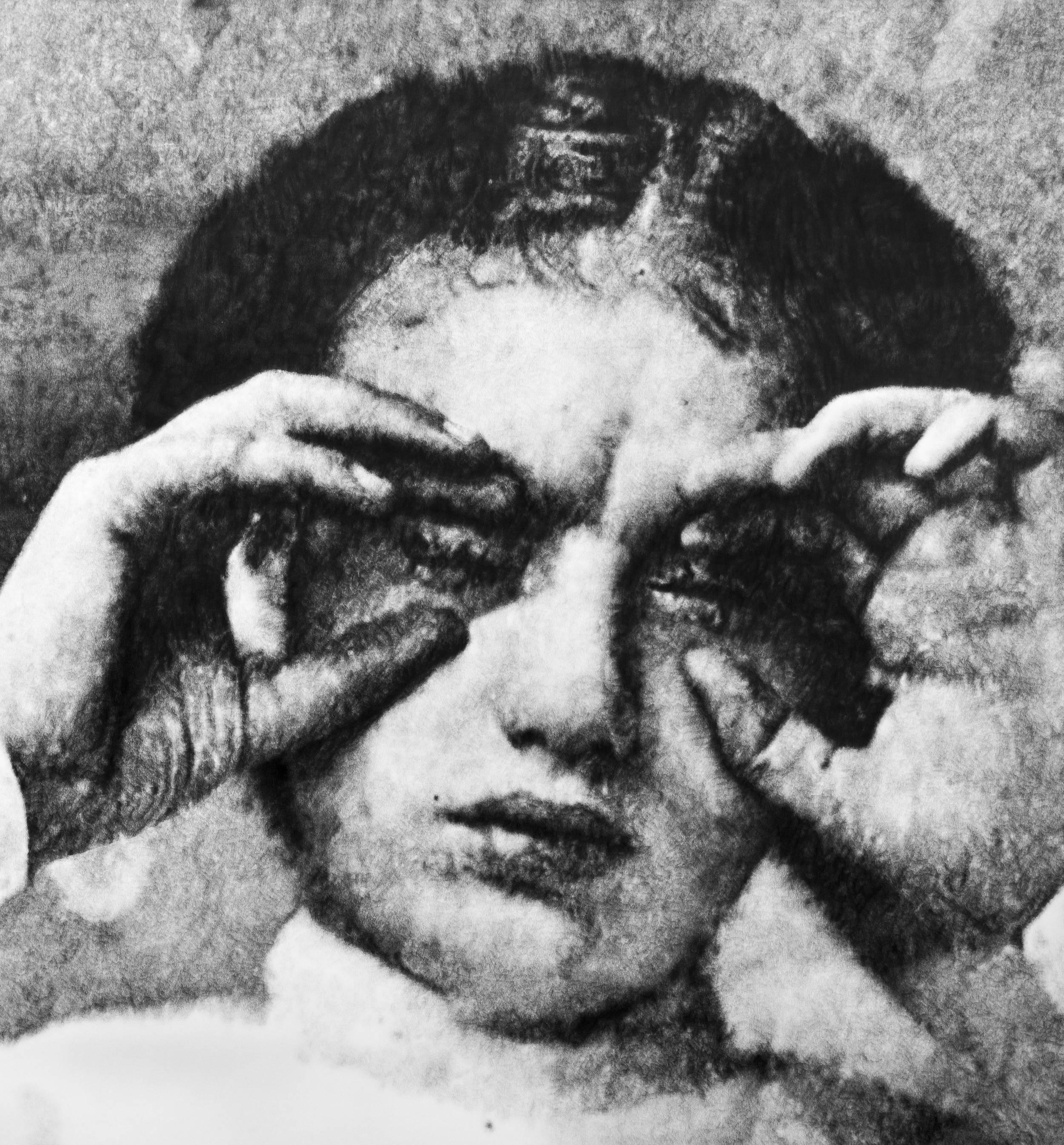 """Éric Manigaud, """"Trachoma pannus keratitis, 1916"""", 145 x 153 cm, 2015"""