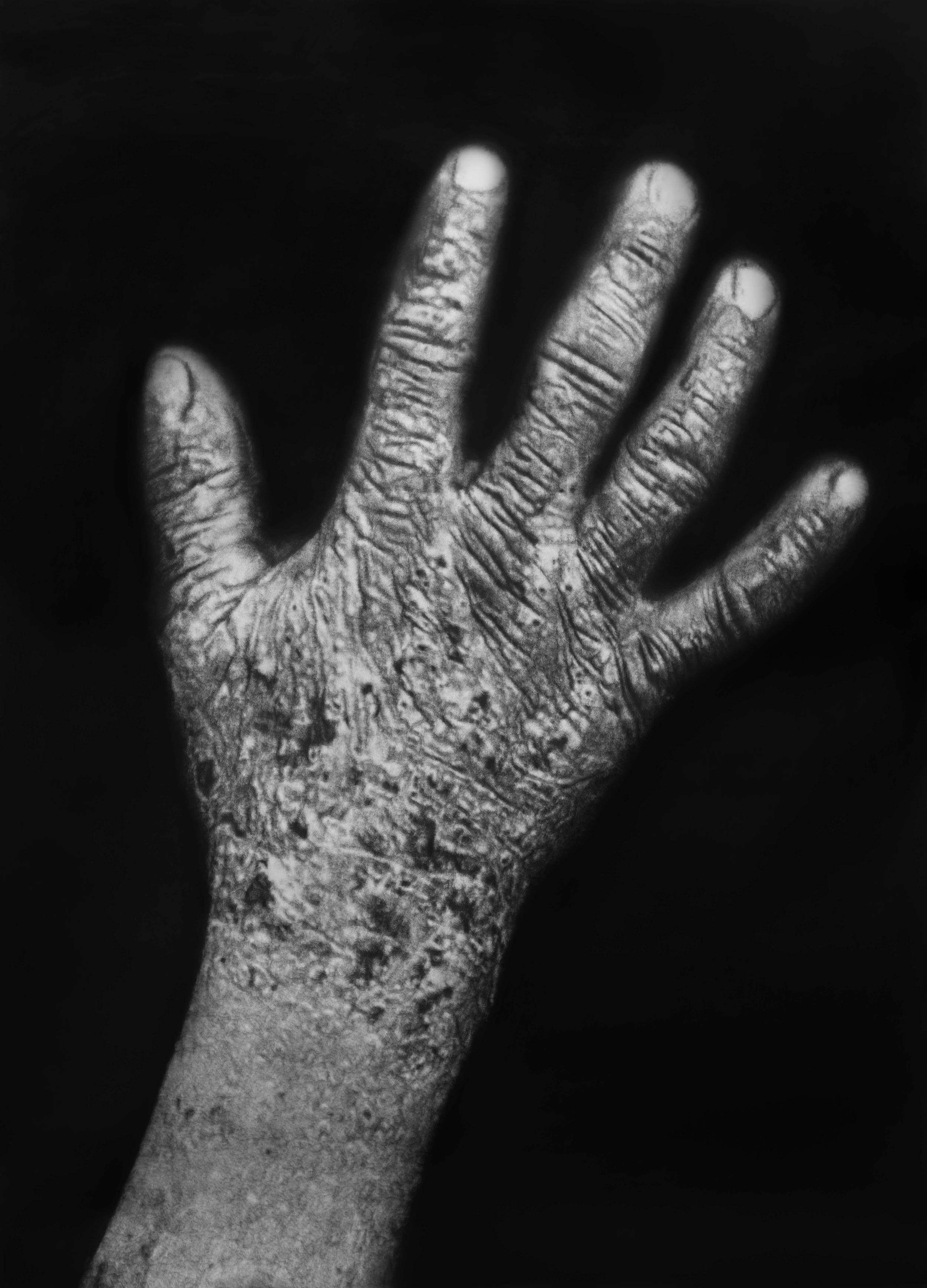 "Éric Manigaud, ""Dartres"", 143 x 192 cm, 2014"