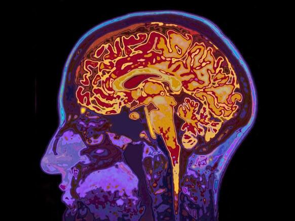 brain-167154543.jpg