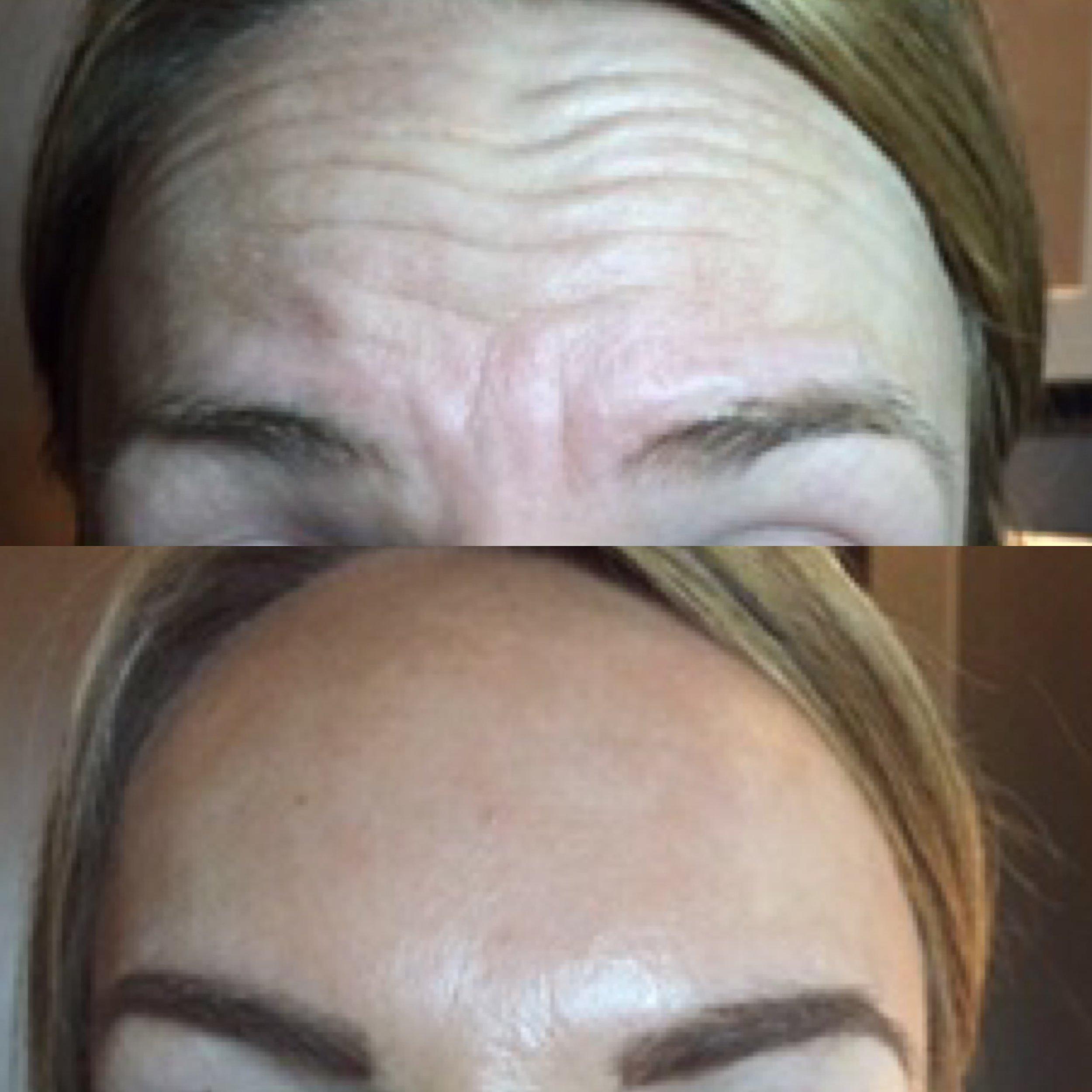 Liesel Holler Botox 2