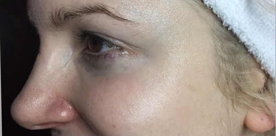 Liesel Holler Botox 1