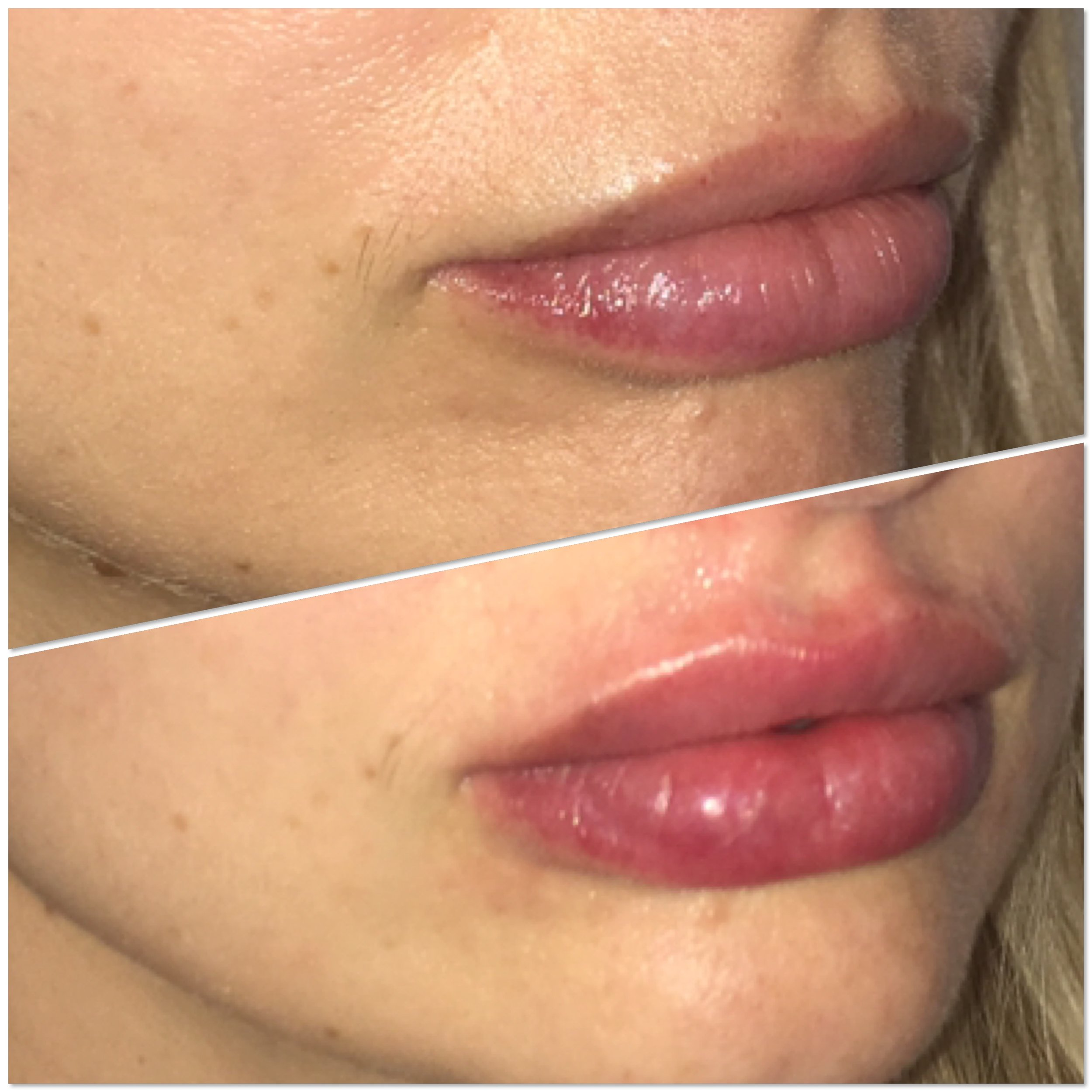 lip fillers.JPG