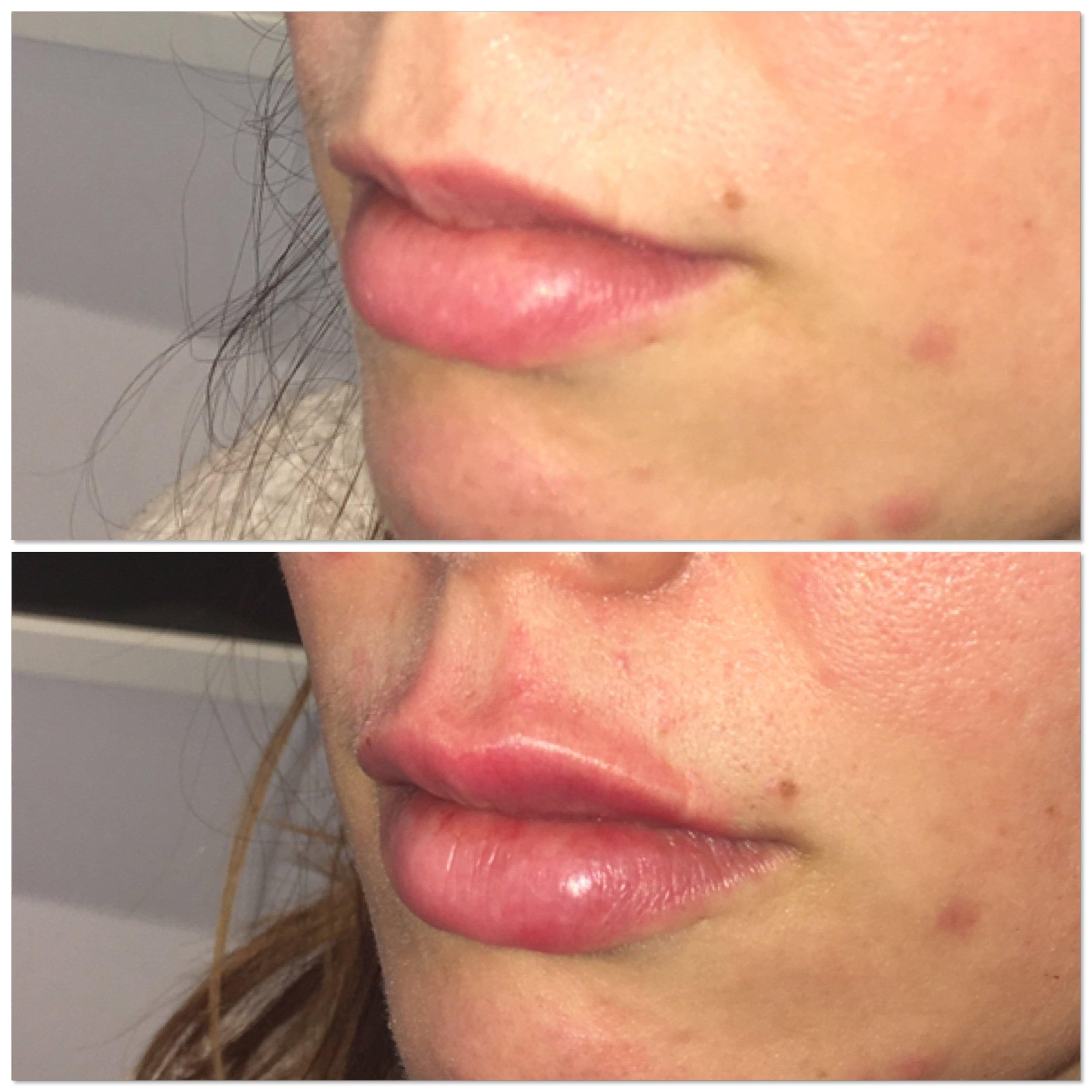 lip fillers in mayfair.JPG