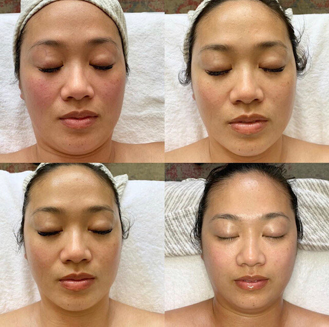 After Three Signature Facials