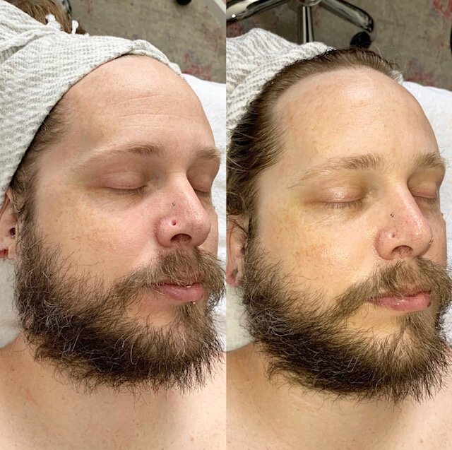 After One Signature Facial