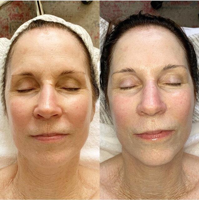 After Two Signature Facials