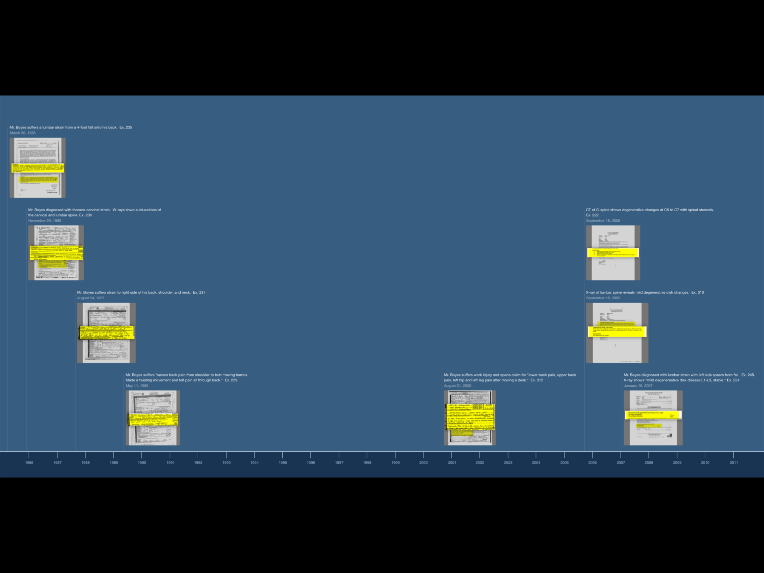 A multi-event timeline in 2D - Here is a real timeline from a case where the sequence of medical treatment, and the presence of pre-existing injuries, was key. Each of the images in this timeline were created in TrialPad, added to photos by taking screen shots, trimming them to size in the Photos app, and adding them to a new event using the