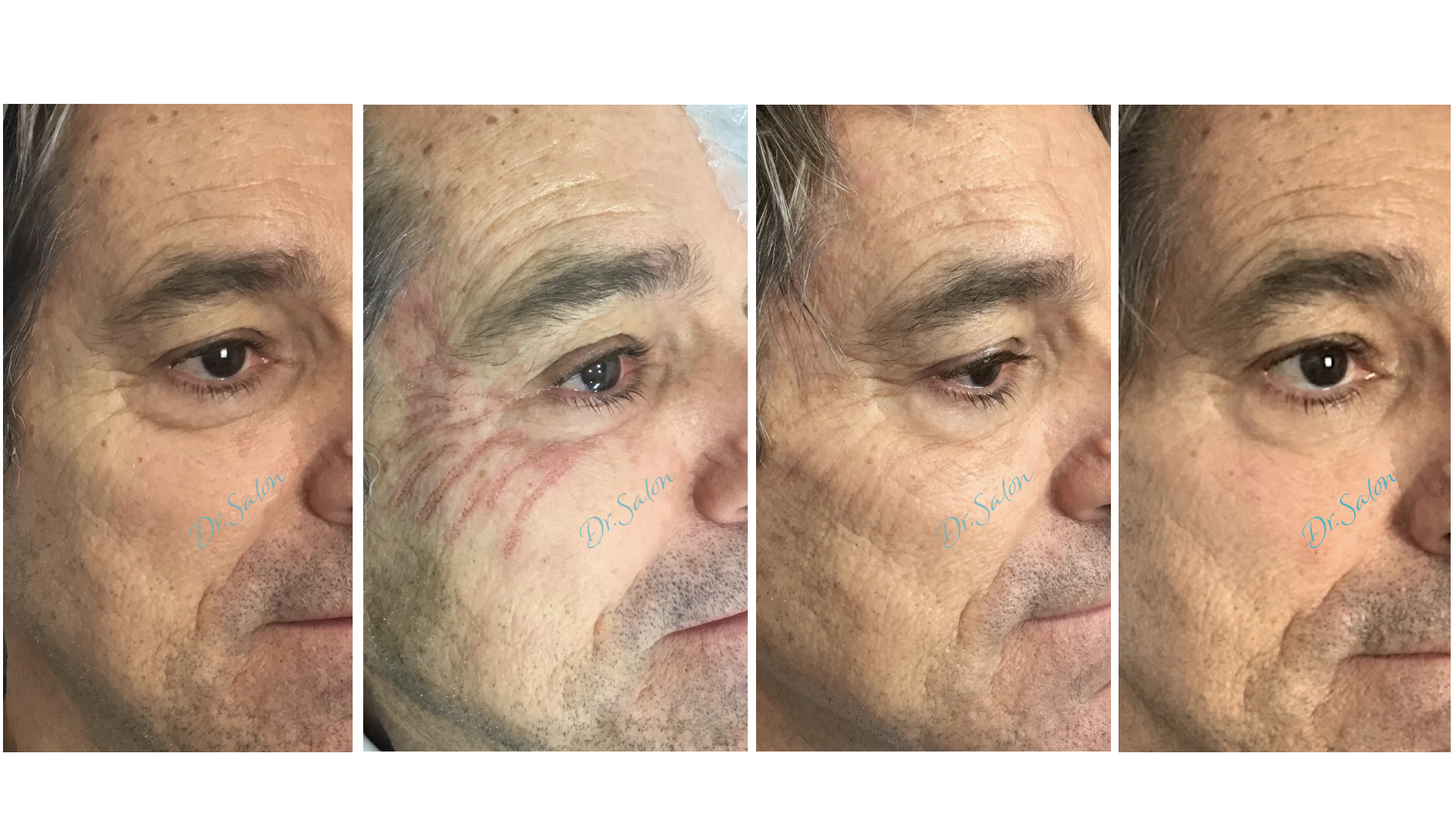 Plasmage wrinkle reduction before, during and after
