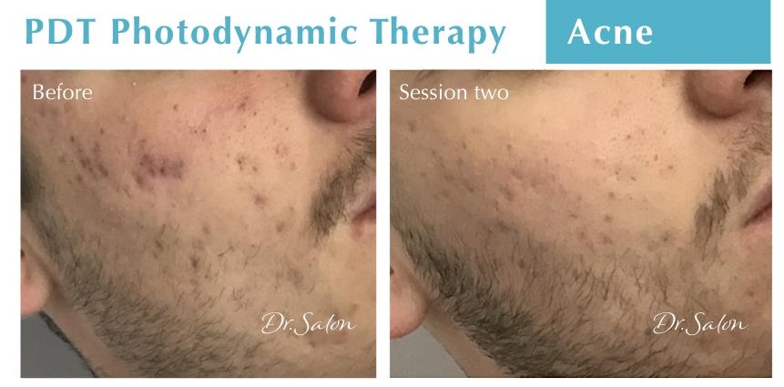 PDT Acne treatment Dr.Salon