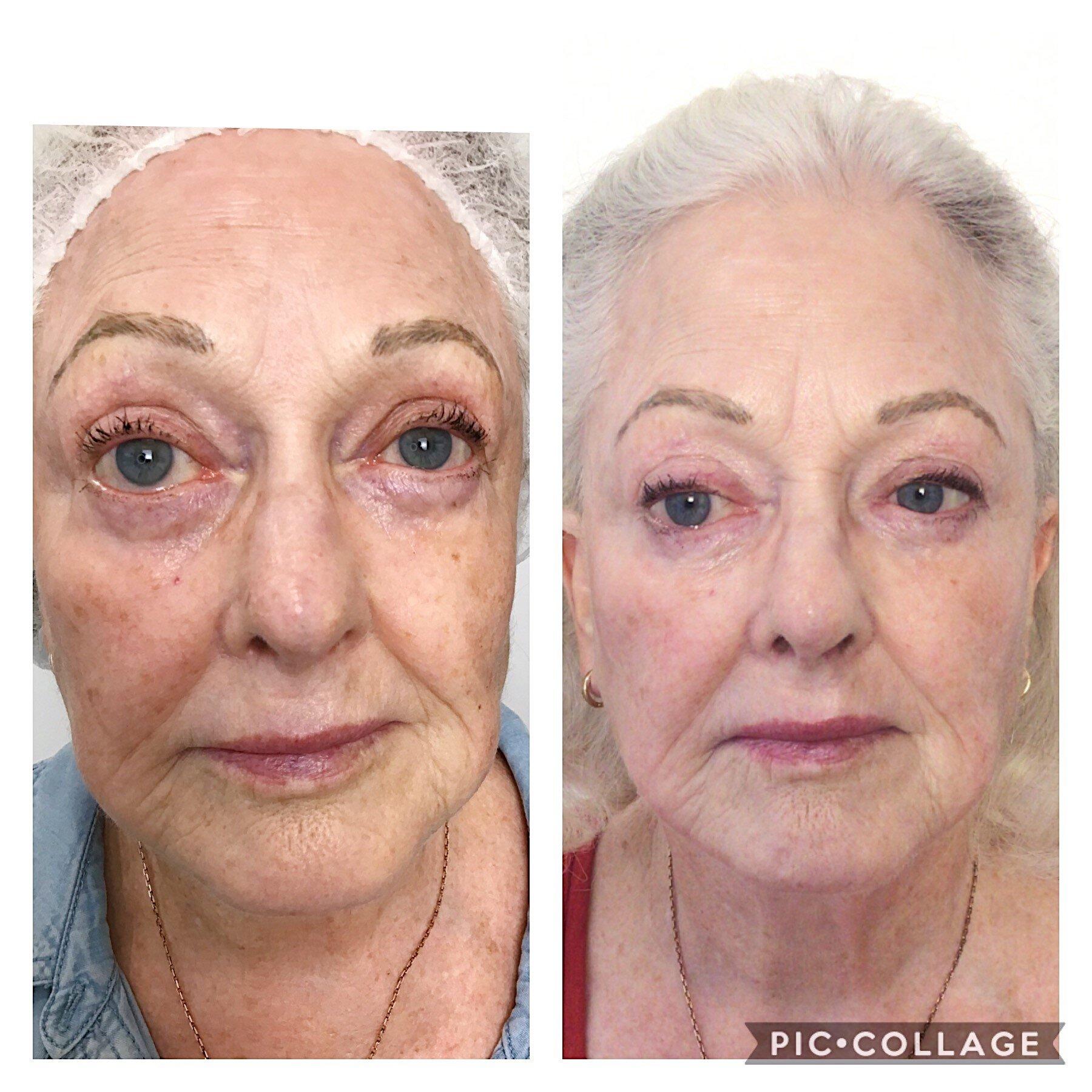 fundal de slăbire botox perth
