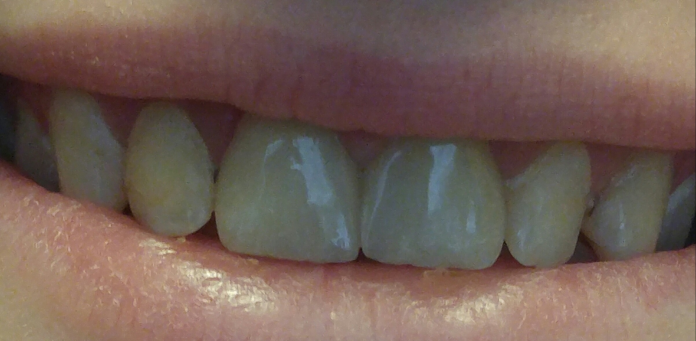 Cerec Crowns #6 thru #11