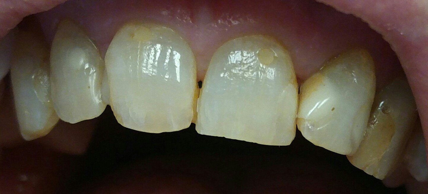 Anterior Teeth #6 thru #11