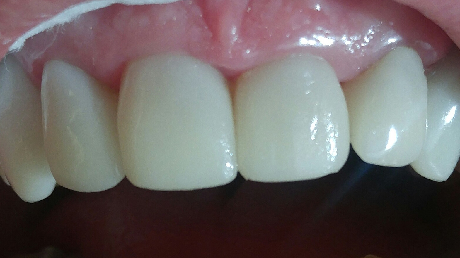 Cerec Crowns #8 & #9