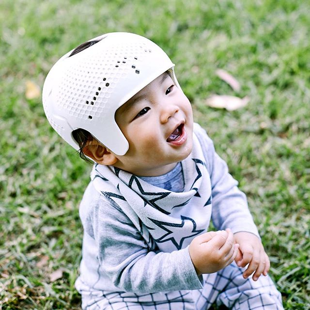 Flat-head syndrome (plagiocephaly) is a common issue for infants and toddlers. It is usually treated with helmet therapy where an othortist creates a custom helmet manually. ODO holistically developed a design and process where a 3d printed helmet is tailored for each child, thus creating a breathable helmet to perfect fit. The result is a contemporary design that uses design and technology to help improve the lives of children and their parents.
