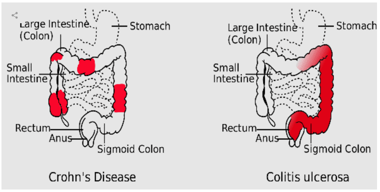 Low Dose Naltrexone Applications In Crohn S Disease Medicine Center Pharmacy