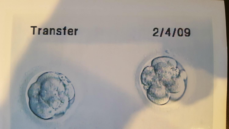 embryos-my-story