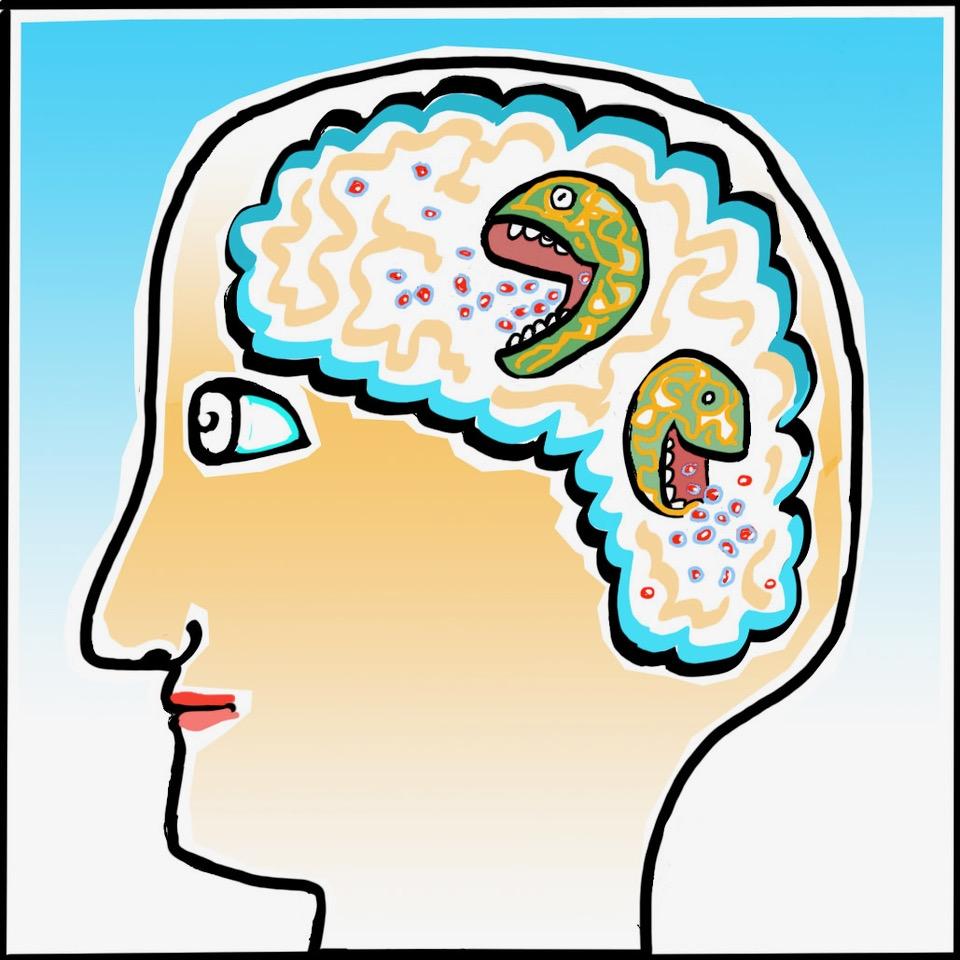 Microglia: The Brain's First Responders