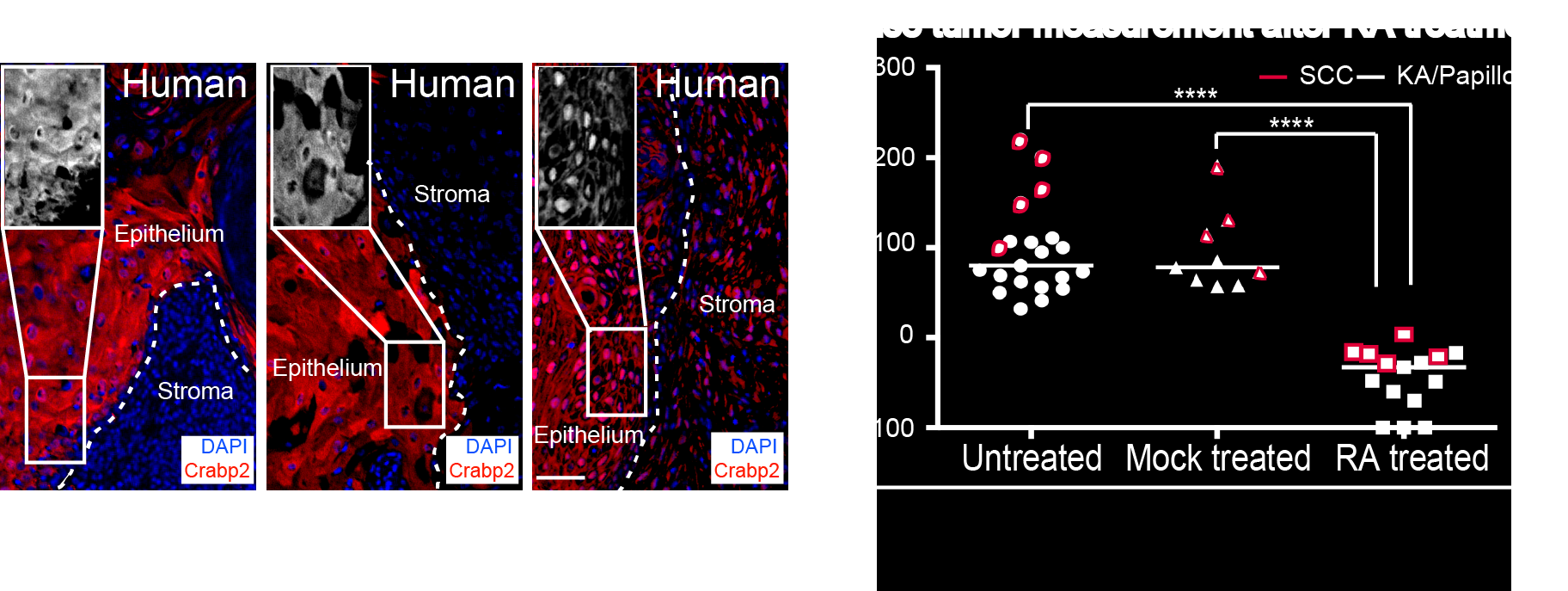 Figure 2. On the left, the Retinoic Acid (RA) pathway is activated during the regression of the human benign KA tumors as visualized by the nuclear localization of a RA component, Crabp2 (in red) in the IF stainings. On the right, RA treatment on both benign and malignant tumors lead to tumor regression.