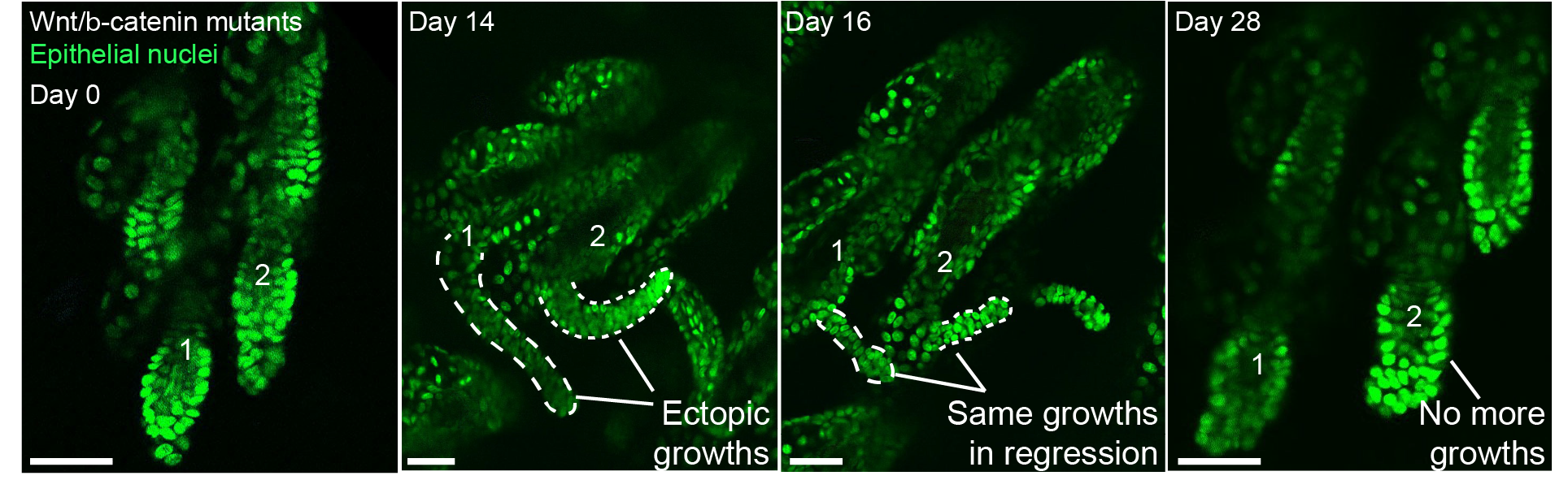 Figure 1. Cells carrying Wnt/b-catenin mutations can drive aberrant growths. Surprisingly, these growths are eliminated from the tissue and do not re-emerge over time.