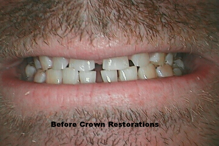 MD Before Crowns.jpg