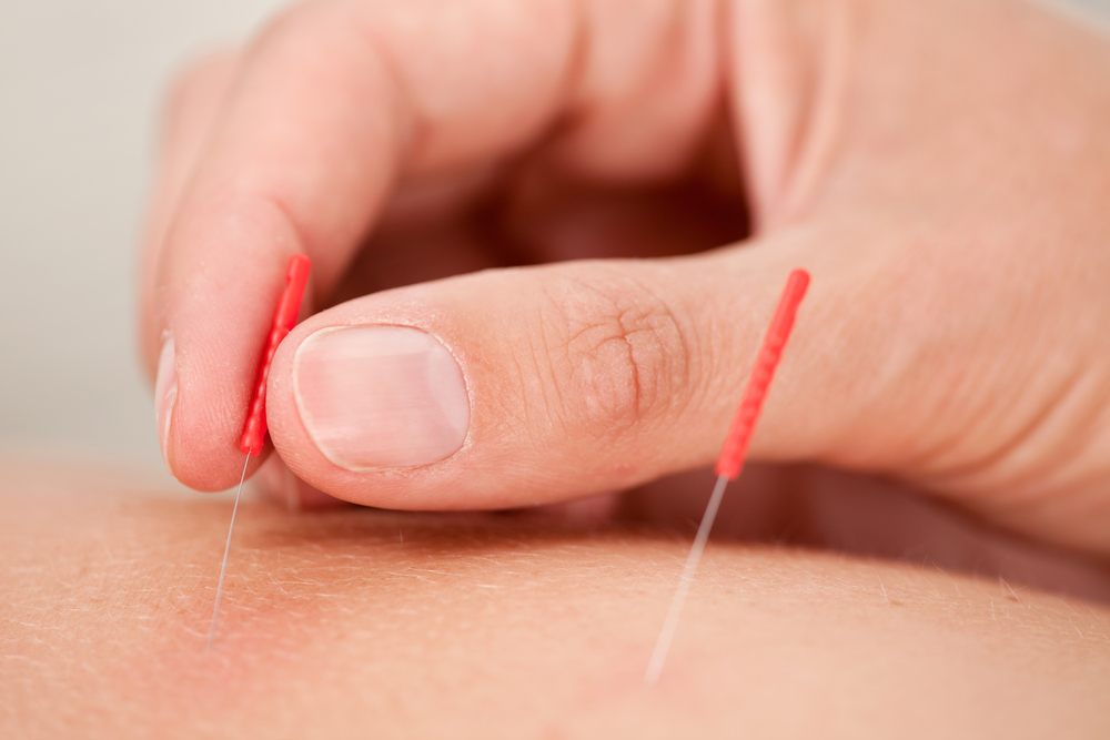 close up of hand putting in needles.jpg