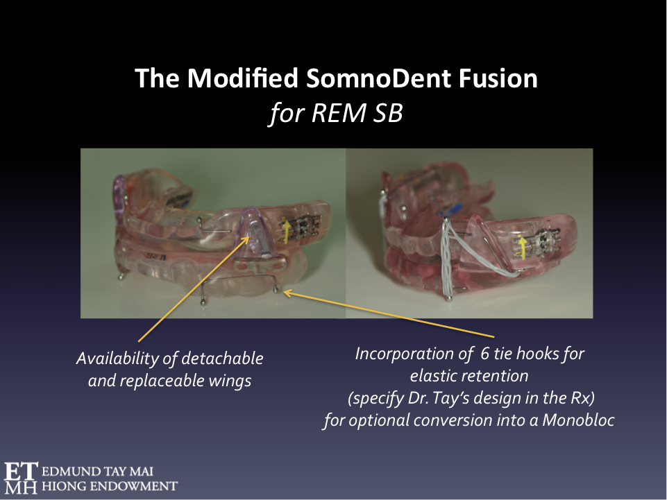Fig. 5  Orthotic therapy for REM SB The modified SomnoDent Fusion is a Mandibular Advancement Splint (MAS) that could be considered in the management of SB when there is comorbid SDB. It is ideal in the management of these 'destructive' REM sleep bruxers as the lateral wings are metal reinforced and replaceable. Tying the maxillary and mandibular plates together with orthodontic power chains prevents injurious mandibular torqueing that not uncommonly occur during REM SB episodes.