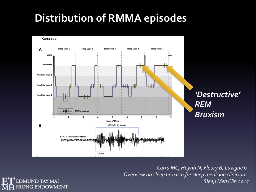 Fig. 6A  Hypnogram representing the schematic distribution of RMMA episodes over the sleep cycles. RMMA episodes are more frequently observed during NREM stage 1 & 2, sleep stage shift, and pre-REM sleep periods. RMMA episodes in REM stage occur less frequently. The latter, however, have greater potential to cause stomatognathic damage and we've had patients who only exhibited REM SB without the NREM variety.   Fig. 6B  Example of an RMMA episode Defined on the masseter electromyographic channel as an activity of at least 3 consecutive EMG bursts (frequency 1Hz) lasting greater or equal to 0.25 sec.