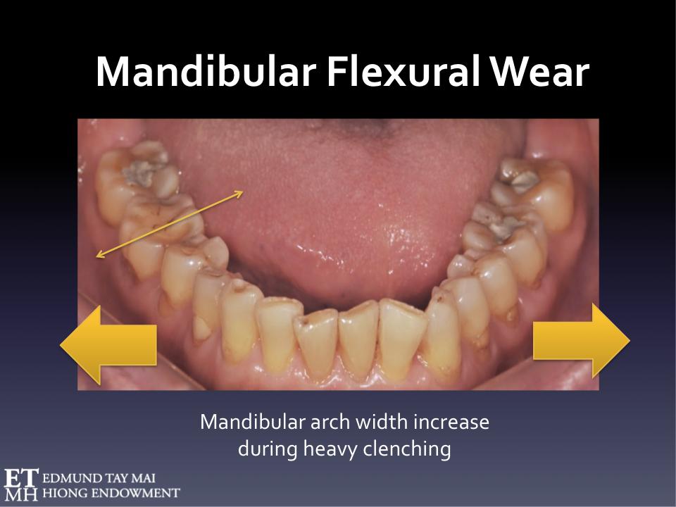 Fig. 9  Pathognomonic occlusal wear pattern related to lateral mandibular flexure associated with habitual (awake) parafunctional clenching