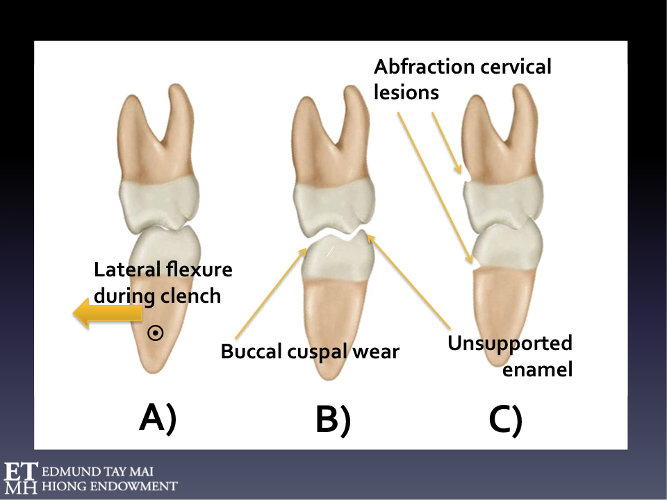 Fig. 10A  Increase in mandibular width during clenching    Coactivation of bilateral hypertrophied temporalis and the pterygo-masseteric slings can cause intermolar distance increases during heavy clenching. The mandibular molar is carried buccally, repeatedly rubbing against opposing surfaces. Maximum lateral mandibular flexure occurring in the horizontal plane as reflected by a 0.5-0.6 mm increase in the intermolar distance has been estimated in chronic habitual clenchers.   Fig. 10B  Pathognomonic mandibular flexural occlusal wear pattern  Involving the buccal facing inclines of the mandibular buccal cusps vs the lingual facing inclines of the maxillary buccal cusps & buccal facing inclines of the mandibular lingual cusps vs the lingual facing inclines of the maxillary palatal cusps. This hollowing out of the mandibular and maxillary occusal tables weakens the antagonists, leaves the unsupported enamel in the mandibular lingual cusps, and sharp edges all around. Prophylactic coronoplasty (e.g. creating more rounded cuspal morphology and reducing the tight grasping mortar-pestal intercuspation) will render the affected teeth less vulnerable to frictional wear/cracks/fractures and plastic restorations less prone to dislodgement and microleakage. The mandibular lingual cusps characteristically end up higher than the buccal in those engaging in severe habitual awake clenching.   Fig. 10C  Compensatory eruption and formation of non-carious cervical abfraction lesion As tooth surfaces wear, compensatory eruption will progressively 'deepen' intercuspation and the increased surface contact area during consequent function and parafunction leads to even greater frictional attrition and unfavorable stress concentration. The parafunctional forces repetitively generated during centric clenching create distinct stress shielding patterns that adversely affect enamel prism integrity at vulnerable cervical regions where prism orientation is different and the amelodentinal junctio