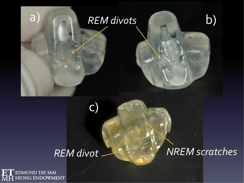 Fig. 14A & B  REM SB wear on sleep NTIs  Fig. 14C  Patient exhibiting both NREM & REM SB