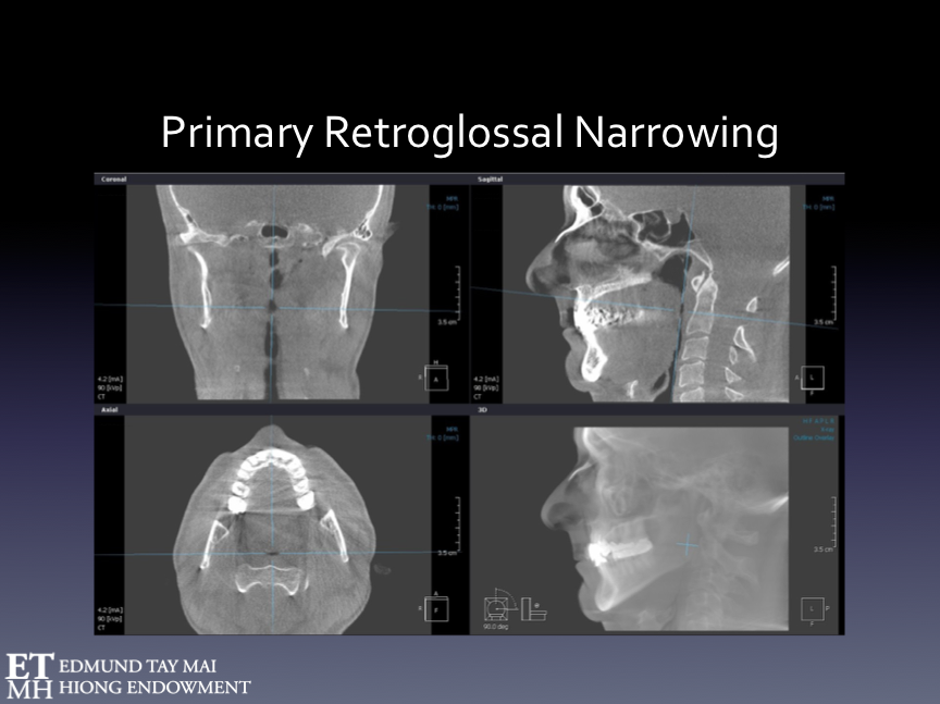 Fig. 21A  The CBCT scan when the patient was biting at maximum intercsupation. His severely compromised upper airway (in black) can be clearly seen despite the fact that the patient was awake and seated upright. His worn occlusion had been Gnathologically reorganized at centric relation.