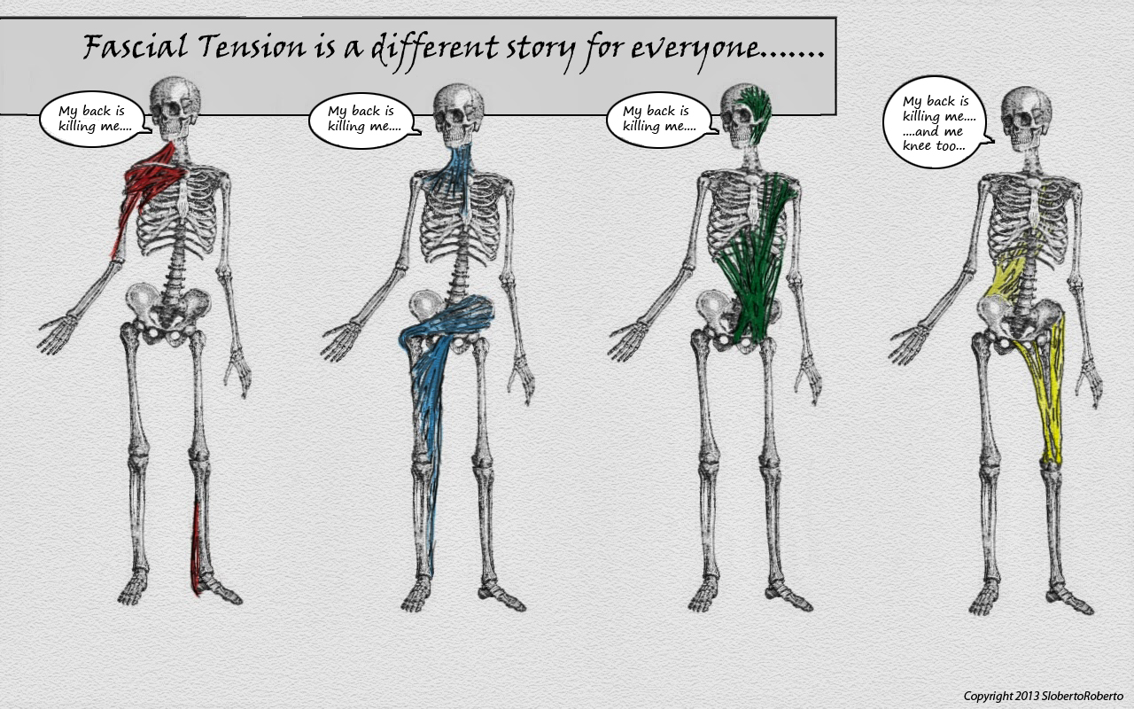 fascial-restrictions-every-body-different-image.jpg