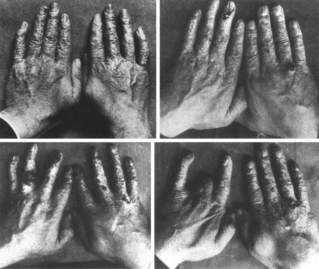 The worsening damage of Thomas Edison's assistant's hands from X-ray radiation. For more reading on this highly interesting topic, feel free to check out a prior article here on The Ape,   Lives that Science Claimed: A Piece of Radiological History  .