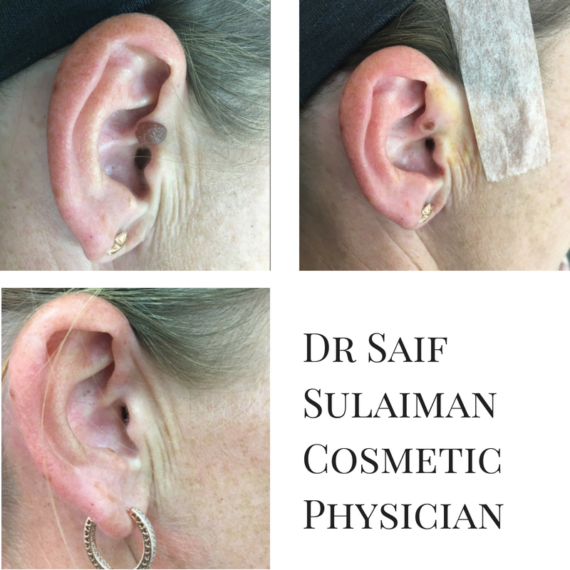 Dr Saif SulaimanCosmetic Physician (1).png
