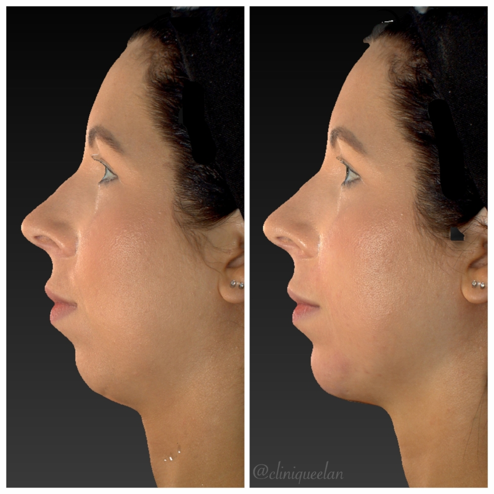 Radiesse® Chin Augmentation