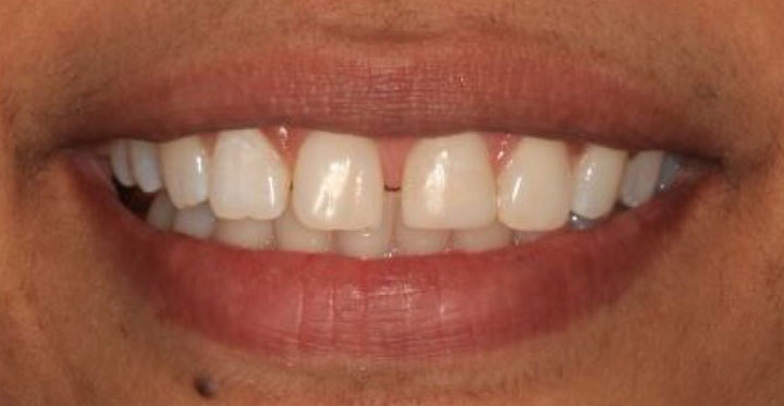 After: Whitening Results