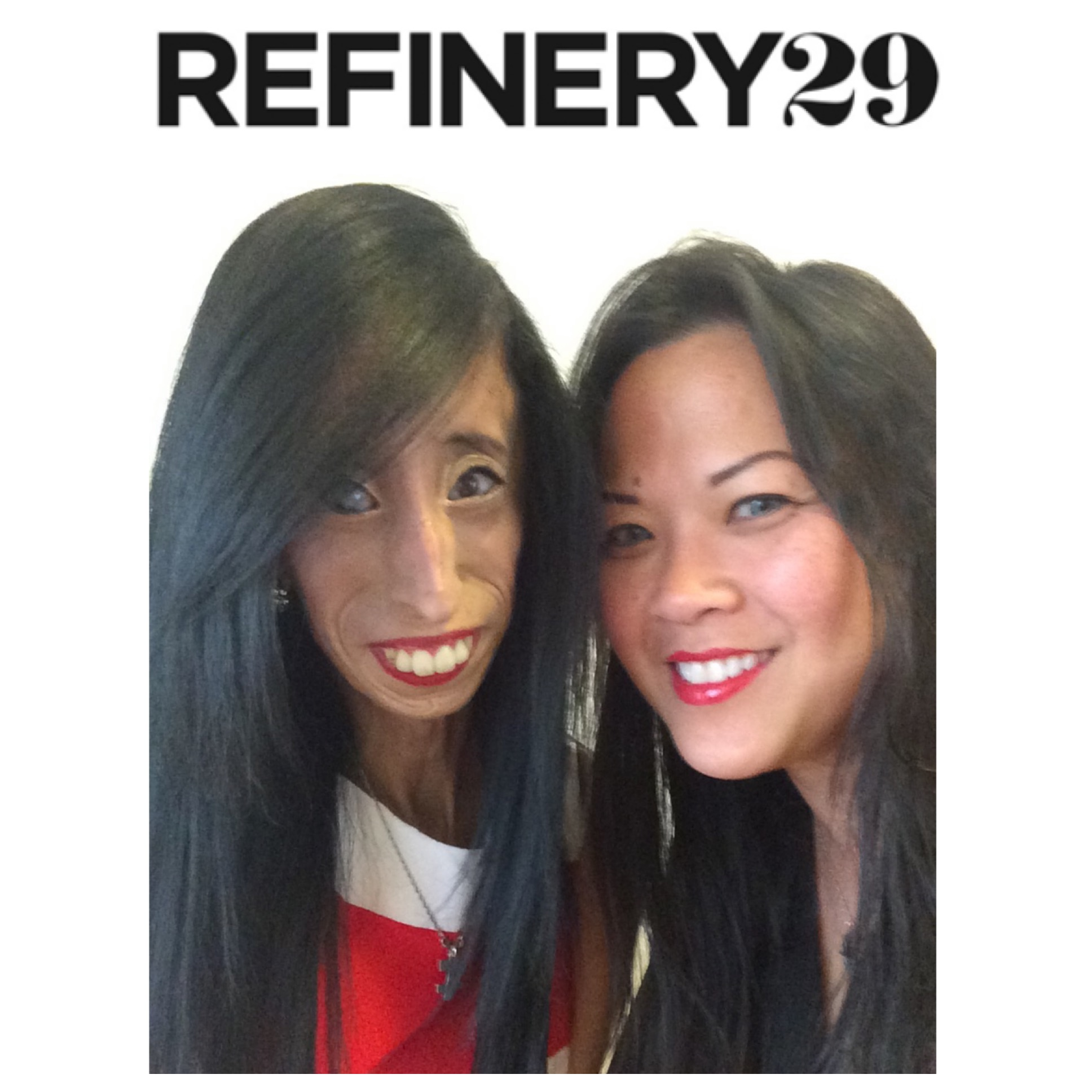 - (Refinery29, December 2, 2015)After Being Called 'The World's Ugliest Woman,' She's Teaching Us All Something About The Danger Of JudgementLizzie Velasquez, who suffers from a rare condition that prevents her from gaining weight, is a vlogger whose YouTube Channel has over 450,000 subscribers. While we spoke, Velasquez's mother, Rita, was in the room, along with producers Jessica Chou and Ngoc Nguyen. Velasquez cited the women present when asked who inspires her. (Full Article.)