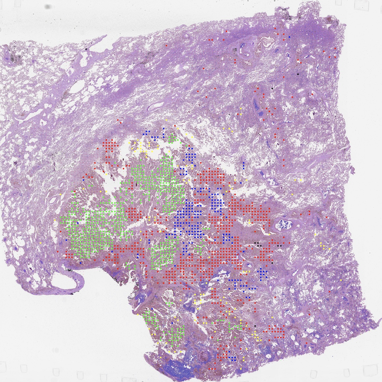 Pathologist-level Lung Cancer Classification -