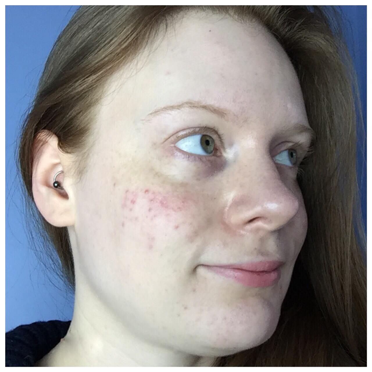 Bare face - right