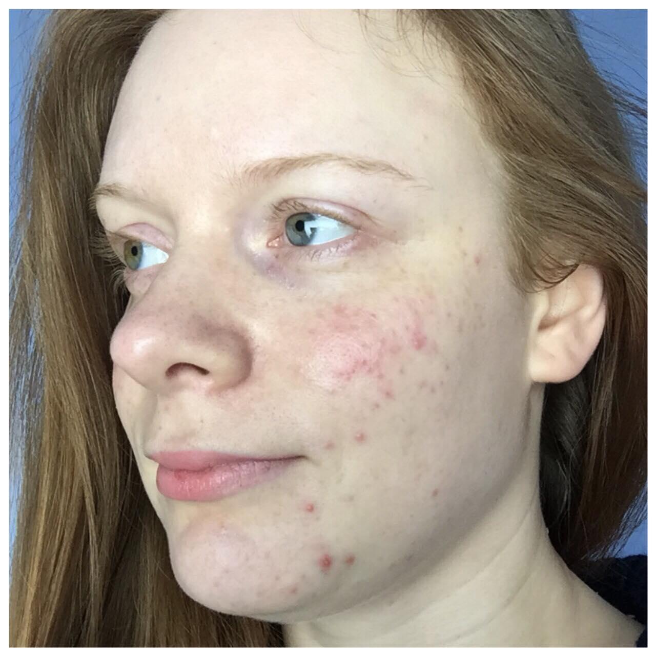 bare face - left